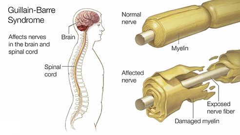 Guillain–Barré Syndrome