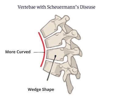 curvature of spine