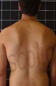 20 degree scoliosis results