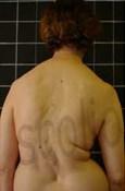 Scoliosis Sufferer