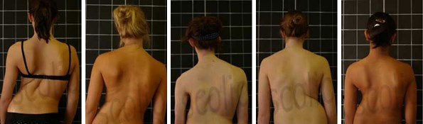 Several individuals with scoliosis (a sideways curvature of the spine)