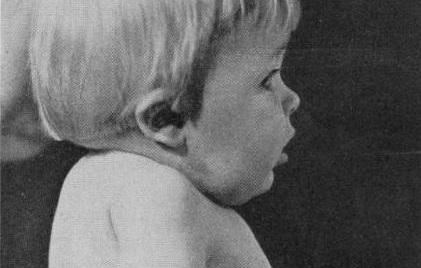 Klippel-Feil syndrome