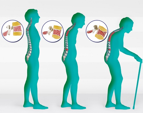 Osteoporosis & Curvature of the Spine