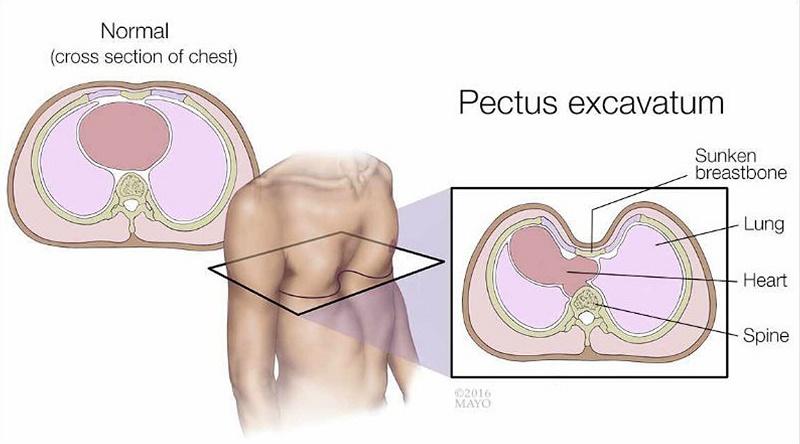 What is pectus excavatum