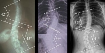 S Shaped Scoliosis