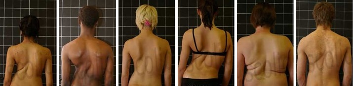 Scoliosis Gallery