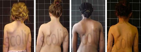 Scoliosis in Young Children