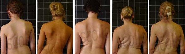 How Fast Does Scoliosis Progress?