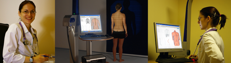 Scoliosis Scan