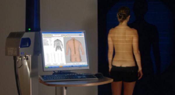 Scoliosis screening