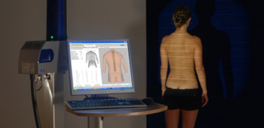 Scoliosis assessment
