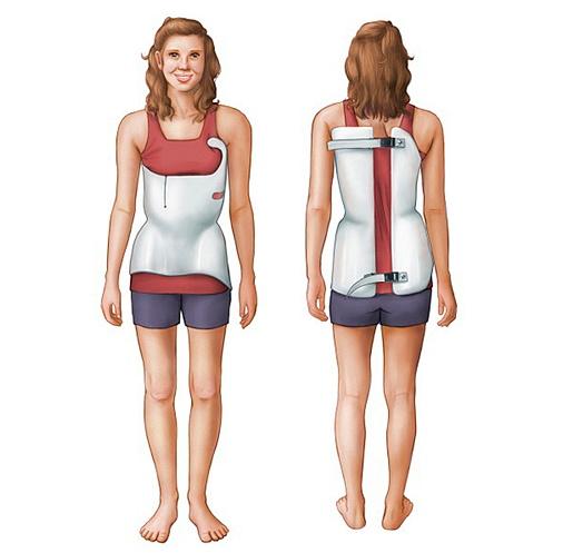 Wearing a scoliosis brace
