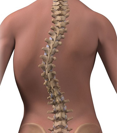 Scoliosis Curved Spine
