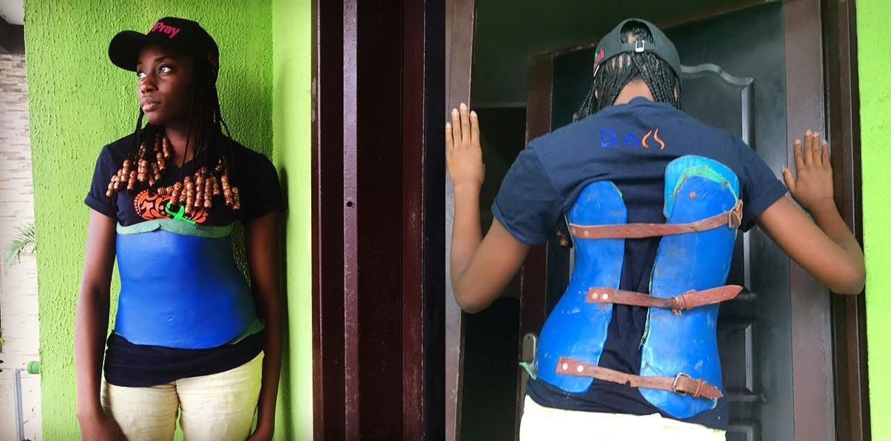 Abimbola with scoliosis brace