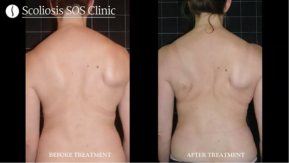 Pia Before and After Scoliosis Treatment