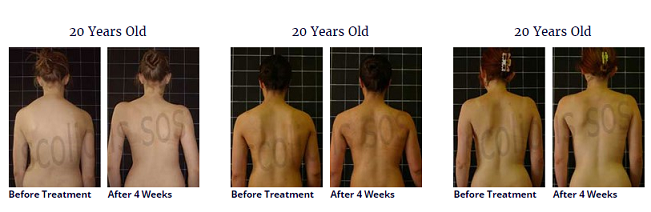 scoliosis treatment for a 20 year old