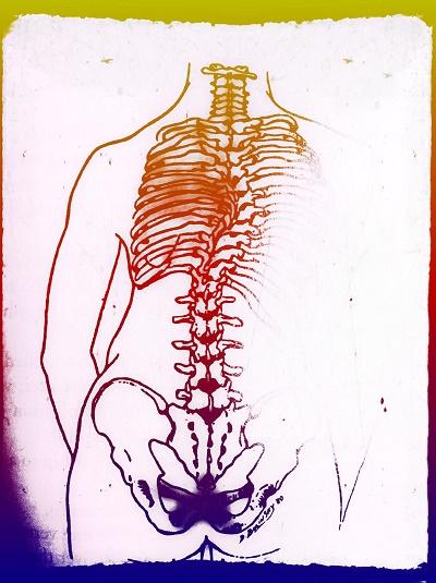 Scoliosis through life