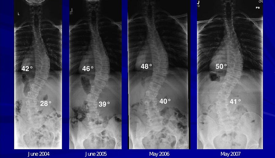 Does Scoliosis Get Worse Over Time?