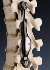 Apifix for Scoliosis