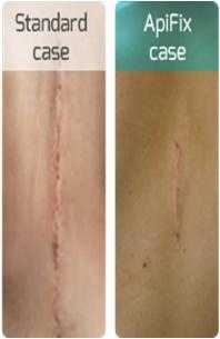 Apifix Scar