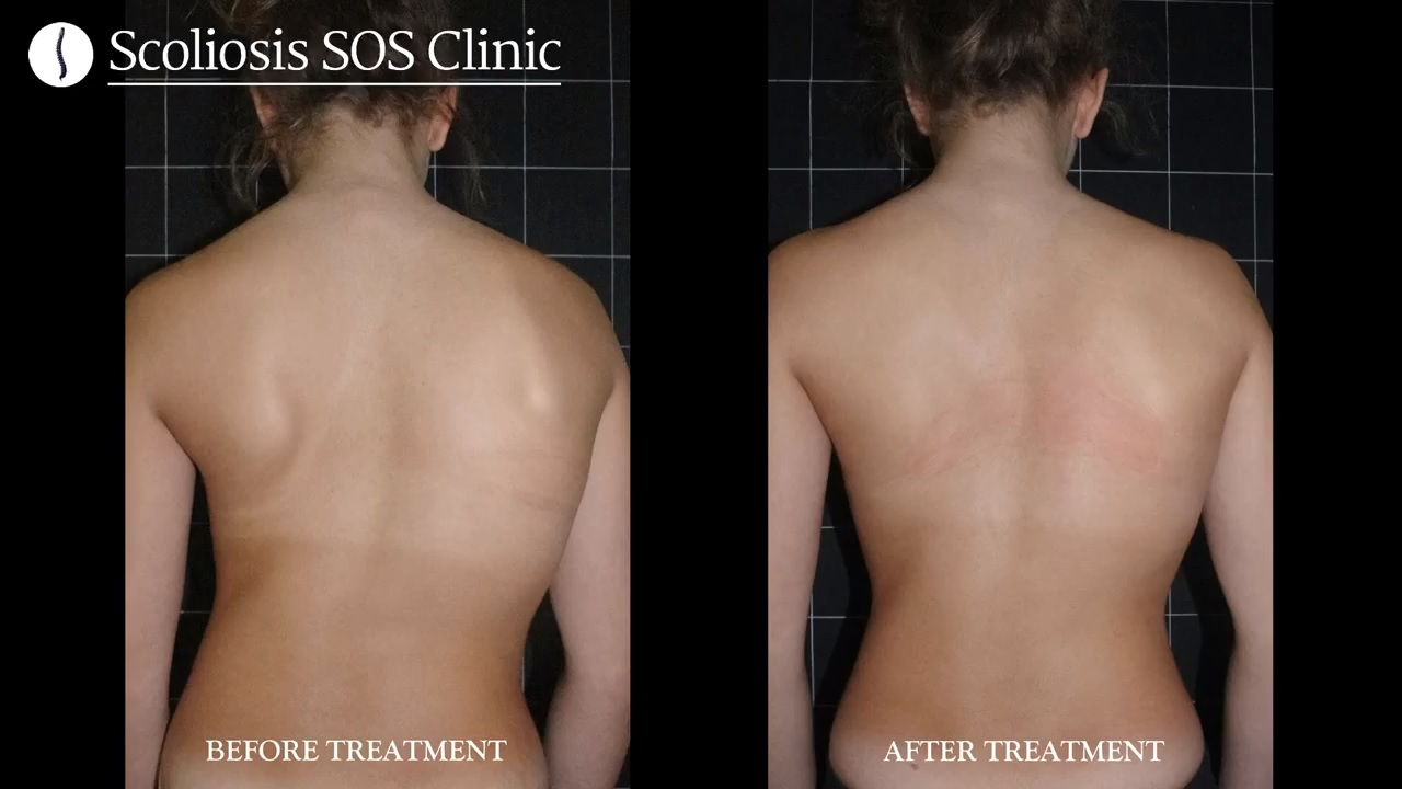 Isabella Before and After Scoliosis Treatment