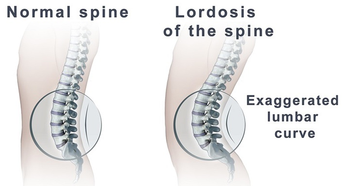 Lordosis of the spine
