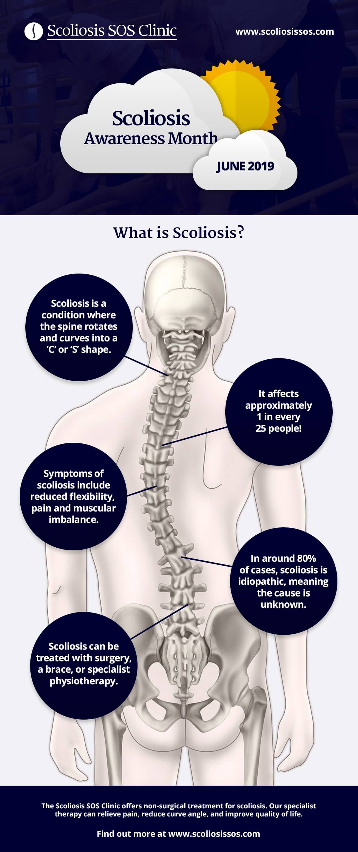 Scoliosis Explained Infographic