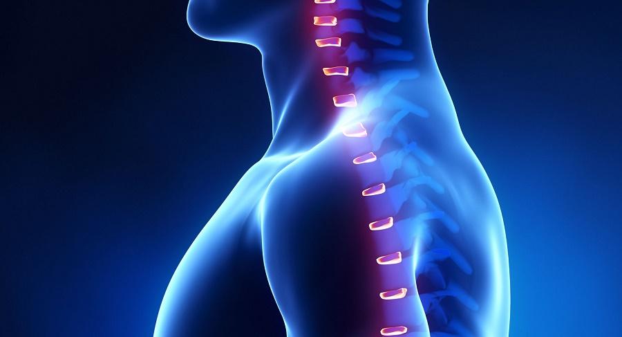 Hyperkyphosis surgery