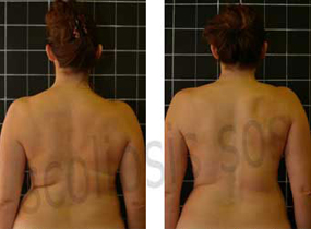 Tina Barlow - Before and After Scoliosis Treatment