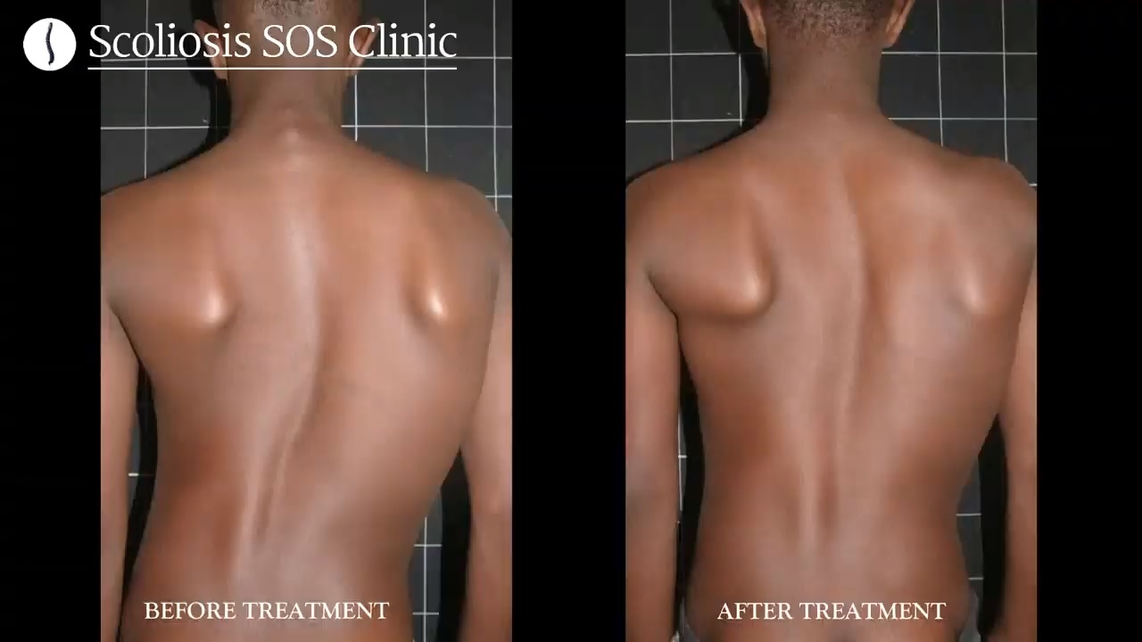 Ian Before and After Scoliosis Treatment