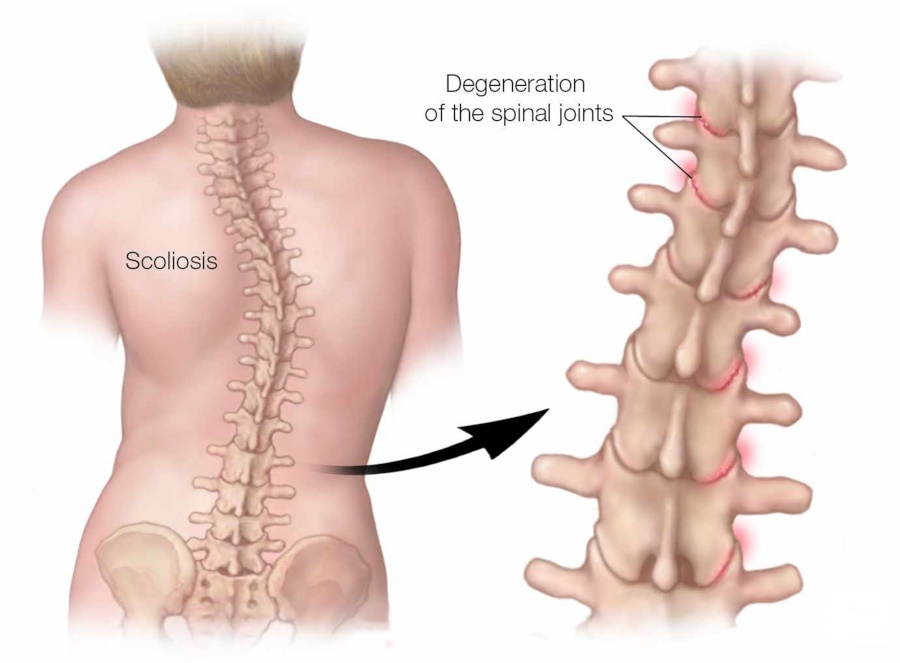 Are scoliosis and arthritis connected?