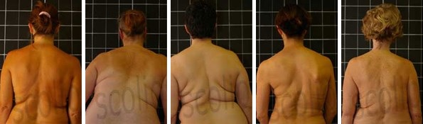 Scoliosis and Menopause